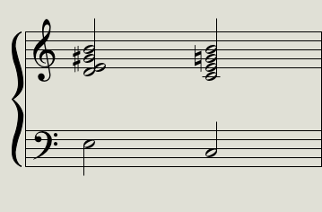 e7-cm7